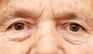 glaucomapat